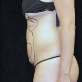 Stomach liposuction before
