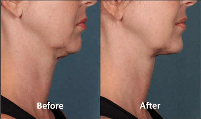 Kybella Before and After Female