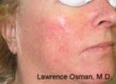 IPL Photofacial Before