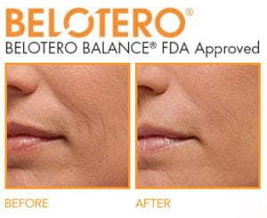 Belotero before and after picture