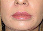 Lip Augmentation After